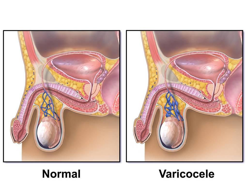 Cause e sintomi del varicocele